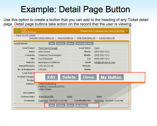 Detail Page Button